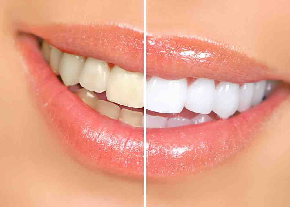Valgemad hambad